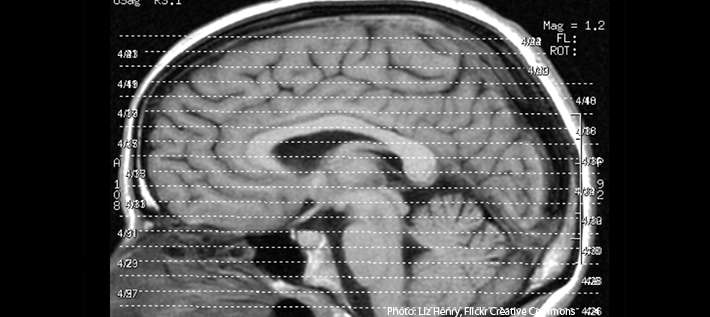 Common medications could delay brain injury recovery