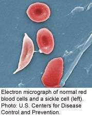 Few sickle cell patients receiving beneficial drug, study finds