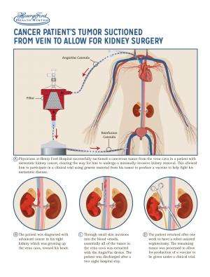 First In Man Tumor Suctioned From Vein To Allow Minimally Invasive Kidney Surgery