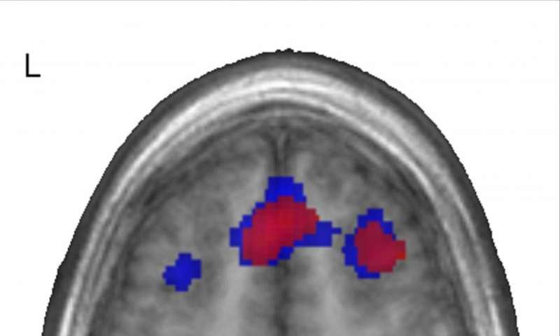 First language wires brain for later language-learning