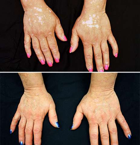 For vitiligo patient, arthritis drug restores skin color