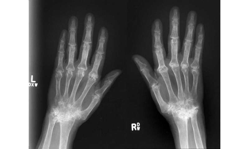 Gene regulating severity of tissue damage caused by rheumatoid arthritis identified