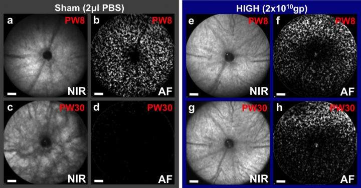 Gene therapy gives long-term protection to photoreceptor cells