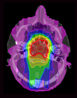 Genetic makeup may make radiation riskier for pediatric cancer patients