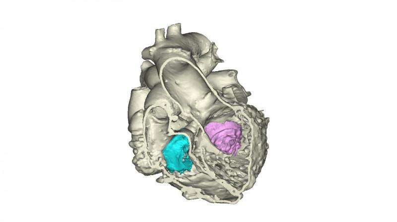 Helen DeVos Children's hospital prints first 3D heart using multiple imaging techniques