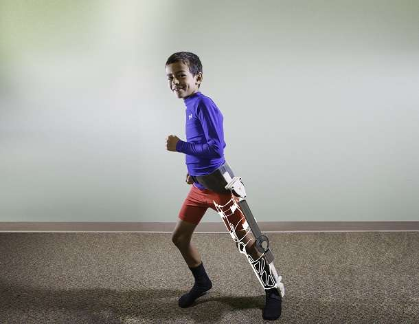 Helping injured children walk, one step at a time