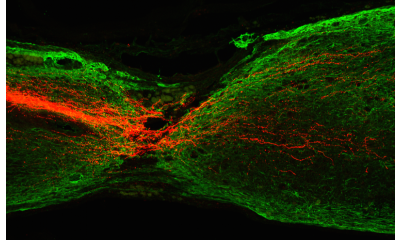 HKUST Researchers discovers ways to regenerate corticospinal tract axons