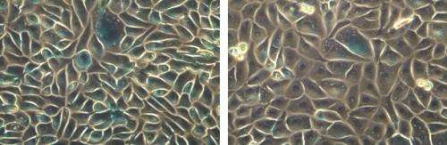 How NORE1A acts as a barrier to tumor growth