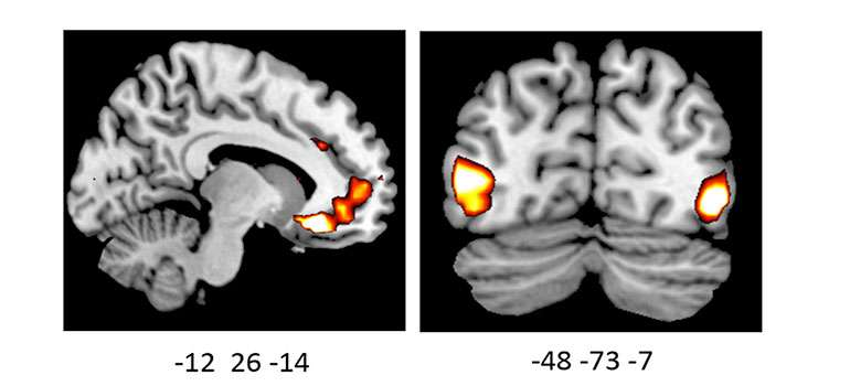 How your brain reacts to emotional information is influenced by your genes