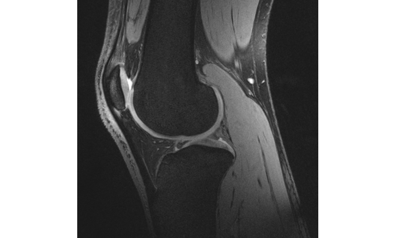 Image: Studying astronauts' knees to rehabilitate bedridden, Earth-bound patients