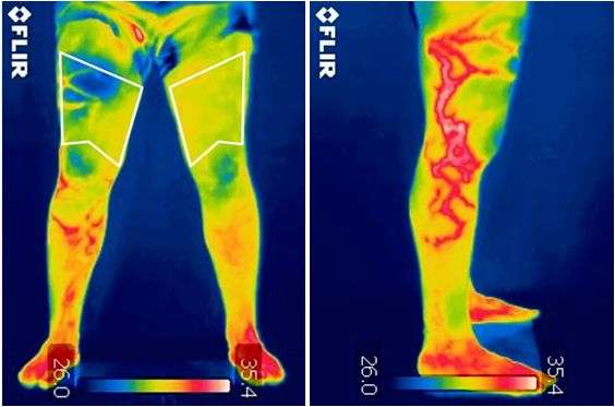 Infrared thermography, a support tool for orthopedic diagnosis