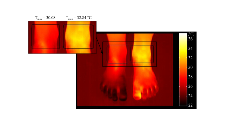 Infrared thermography can detect joint inflammation and help improving work ergonomics