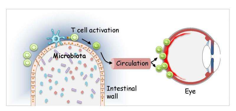 In uveitis, bacteria in gut may instruct immune cells to attack the eye