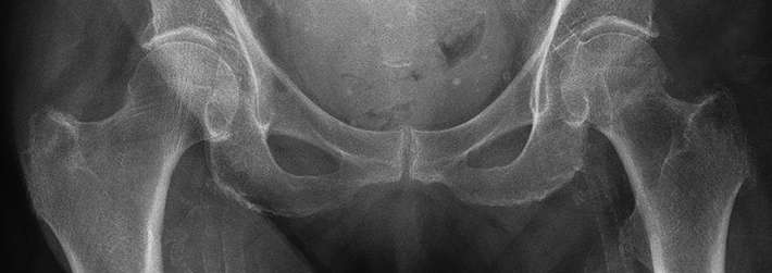 Lack of evidence on how to care for hip fracture patients with dementia
