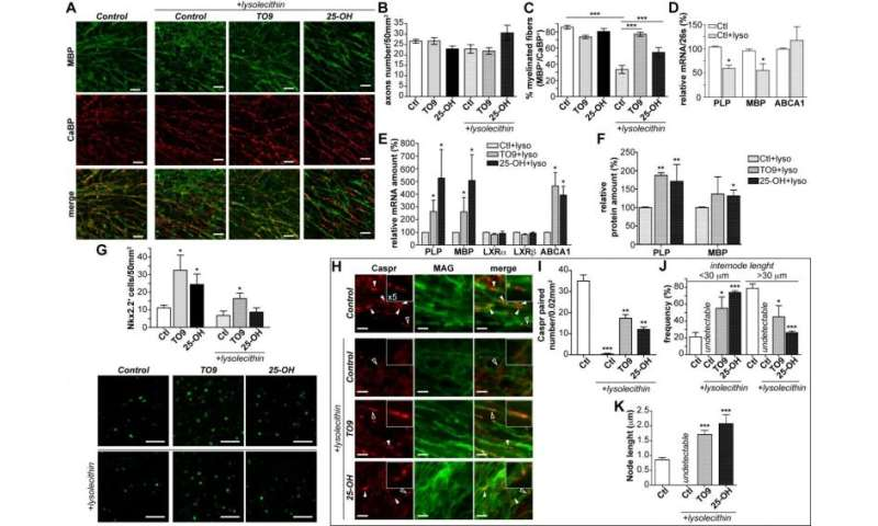 LXR activation accelerates remyelination in organotypic cerebellar cultures