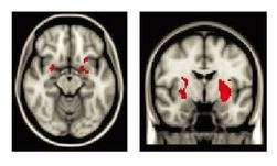 Maltreated children's brains show 'encouraging' ability to regulate emotions