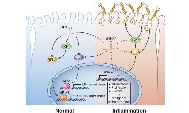 miR-7 suppresses stomach cancer