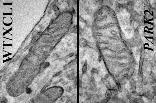 Mitochondria are altered in human cell model of Parkinson's disease