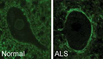 Mixed up cell transportation key piece of ALS and dementia puzzle