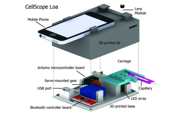 Mobile phone video microscope automates detection of parasites in blood