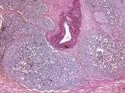 MRI-ultrasound fusion improves prostate biopsy cancer detection