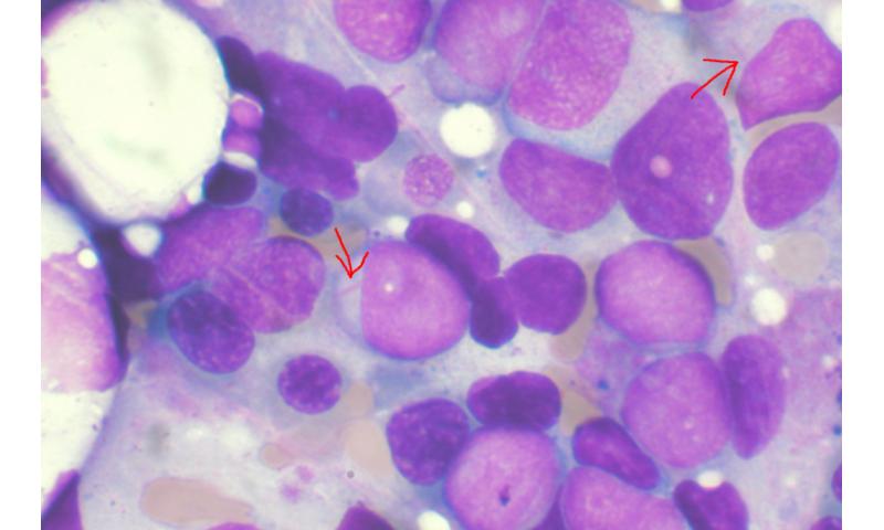 , Research team illuminates potential new treatment in acute myeloid leukemia