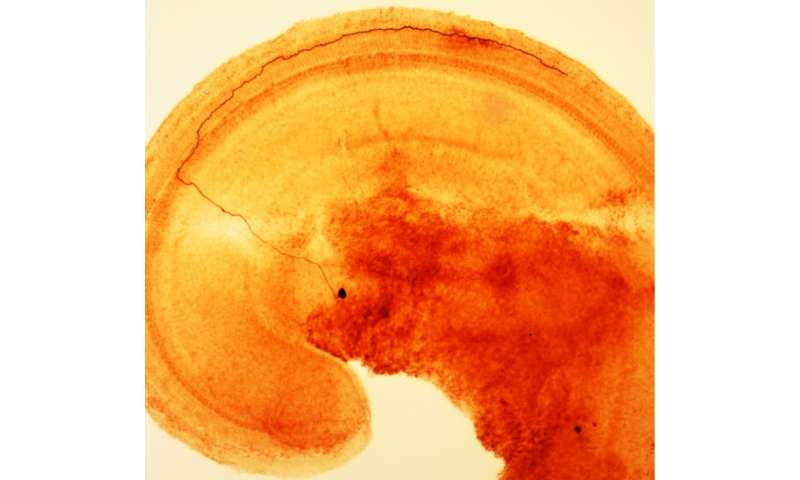 Nerve cells warn brain of damage to the inner ear