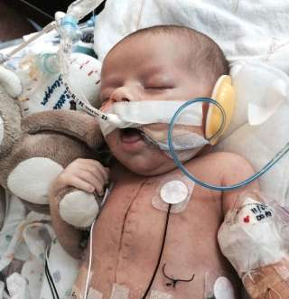 Newborn with heart defect saved after 13-hour operation