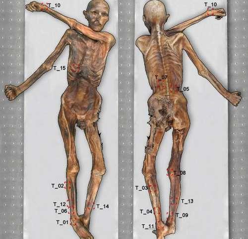 New tattoos discovered on Oetzi mummy