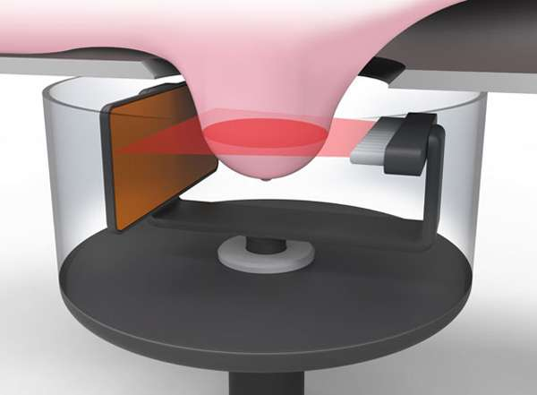 New ultrasound sensors for improved breast cancer screening