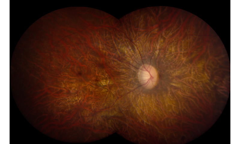 NIH-funded study points way forward for retinal disease gene therapy