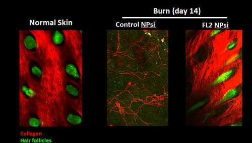 Novel nanoparticle therapy promotes wound healing