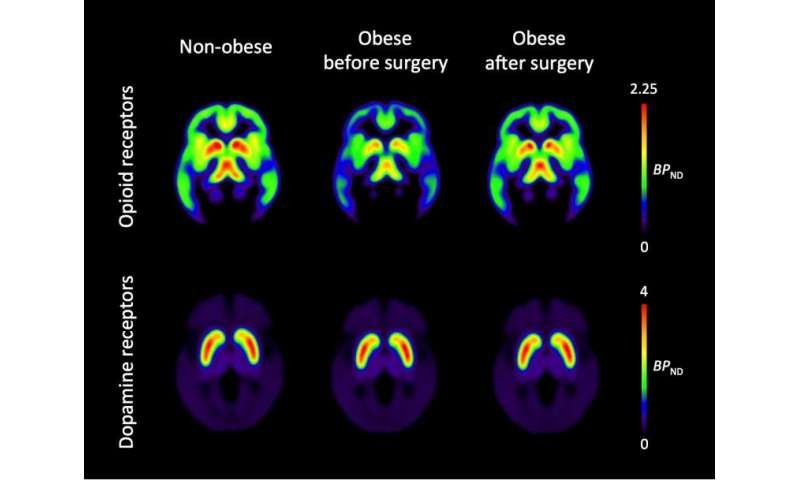 Obesity surgery normalizes brain opioids