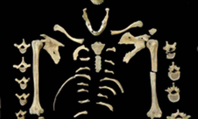 Oldest case of leukemia discovered—prehistoric female skeleton shows signs of this cancer