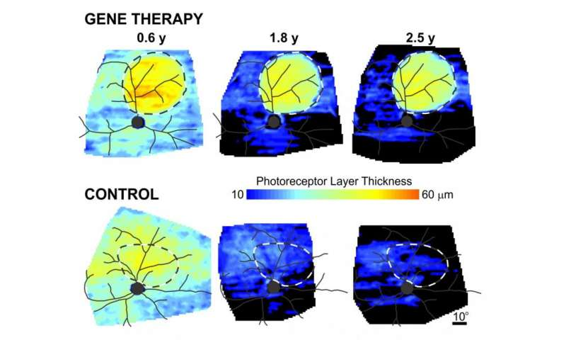 Penn study stops vision loss in late-stage canine X-linked retinitis pigmentosa