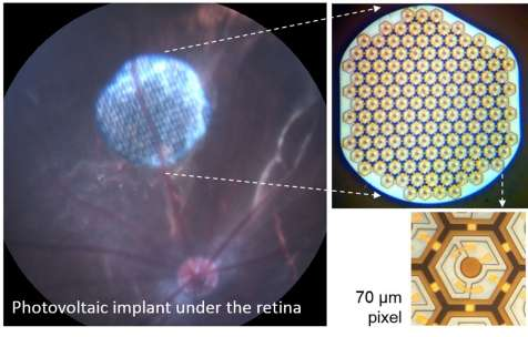 Photovoltaic retinal implant could restore functional sight, researchers say