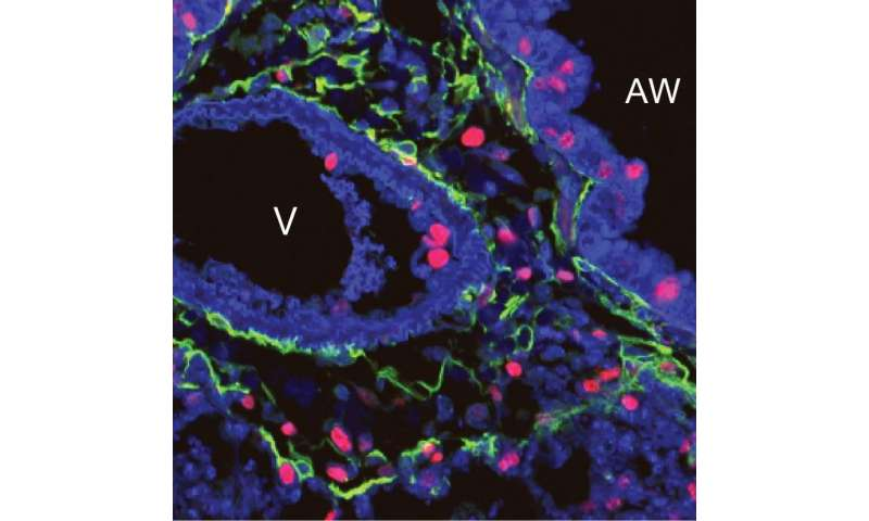 Pinpointing gene that regulates repair and regeneration in adult lungs