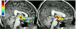 Placebo power: Depressed people who respond to fake drugs get the most help from real ones