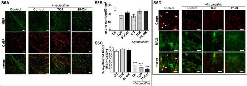 Presence of LXRs is crucial for oxysterol-induced ex vivo remyelinatio