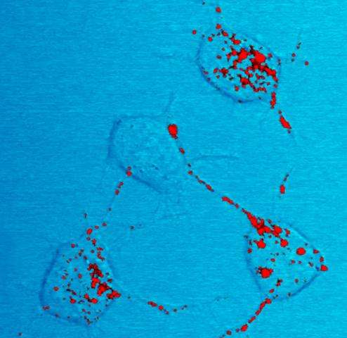 Prion trials and tribulations: Finding the right tools and experimental models