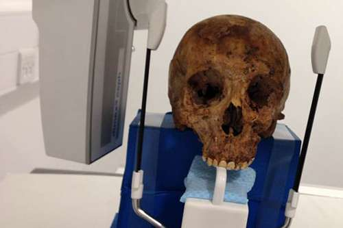 Radiography academics X-ray Victorian skeletons from Crossrail excavations