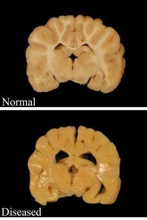 Rare neurological disease shines light on health of essential nerve cells