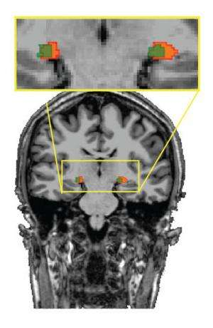 Results challenge conventional wisdom about where the brain processes visual information