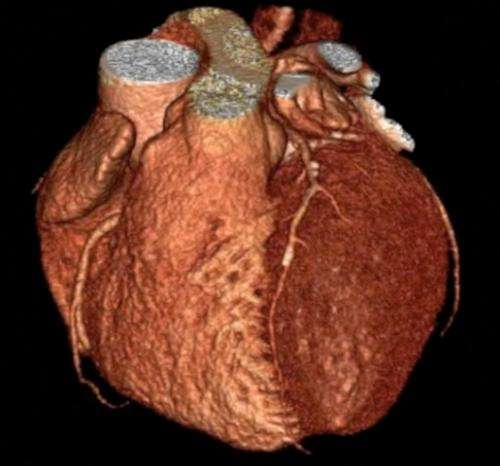 Scans for clinic patients may cut heart attack risk, study finds