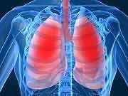 Six-minute walk distance IDs post-lung transplant survival