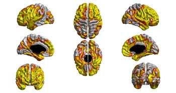 Smoking thins vital part of brain