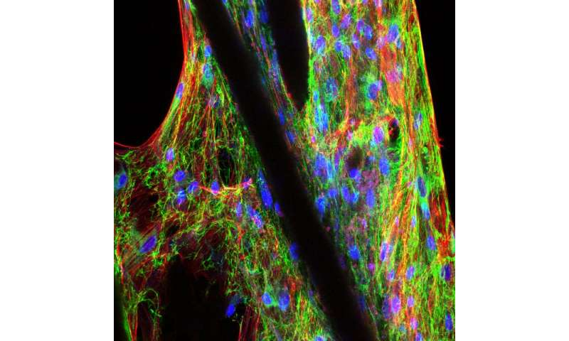 Soft-tissue engineering for hard-working cartilage