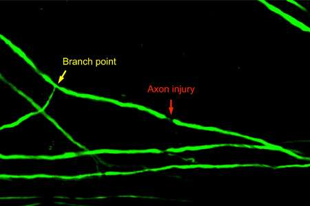 Spinal cord axon injury location determines neuron's regenerative fate