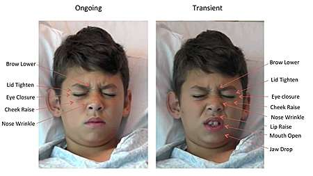 Staring pain in the face -- software 'reads kids' expressions to measure pain levels