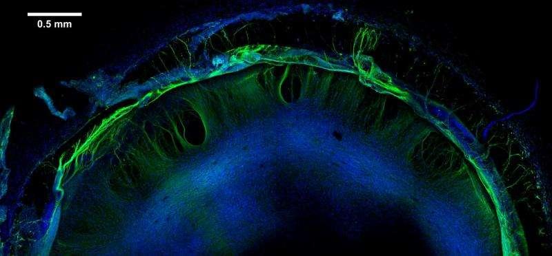 Stem cell-derived 'organoids' help predict neural toxicity